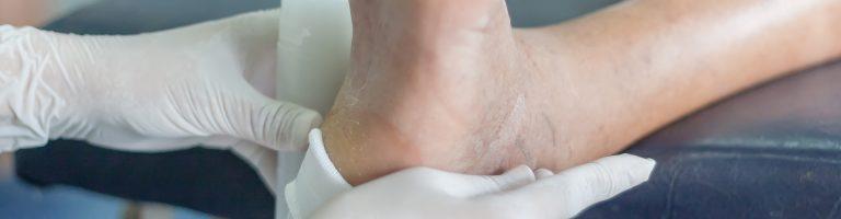 Wundversorgung durch Wundmanager Nusser & Schaal